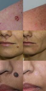 Удаление родинки на лице фото до и после