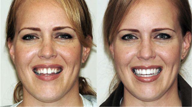 Зубы до и после виниров фото