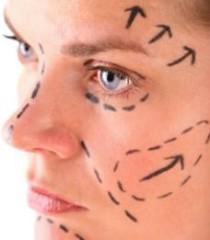 Подтяжка лица нитями фото