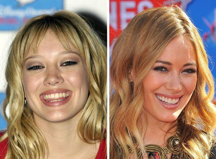 Хилари Дафф до и после фото