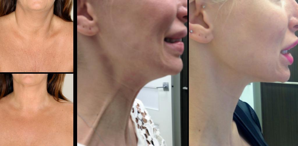 Ботокс в шею фото до и после