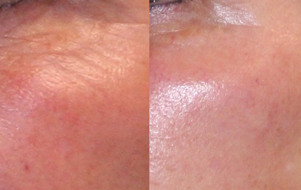 Удаление морщин лазером вокруг глаз