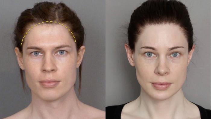 Изменение линии роста волос на лбу до и после - мужская и женская линия роста волос