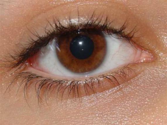 Карие глаза без лимбального кольца