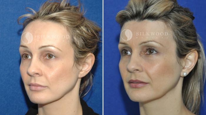 Операция по уменьшению лба до и после