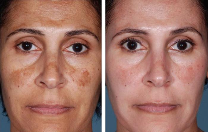 Гиперпегментация лица до и после