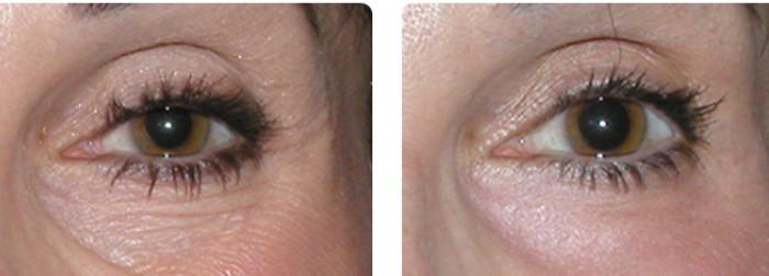 Морщины вокруг глаз до и после правильного ухода