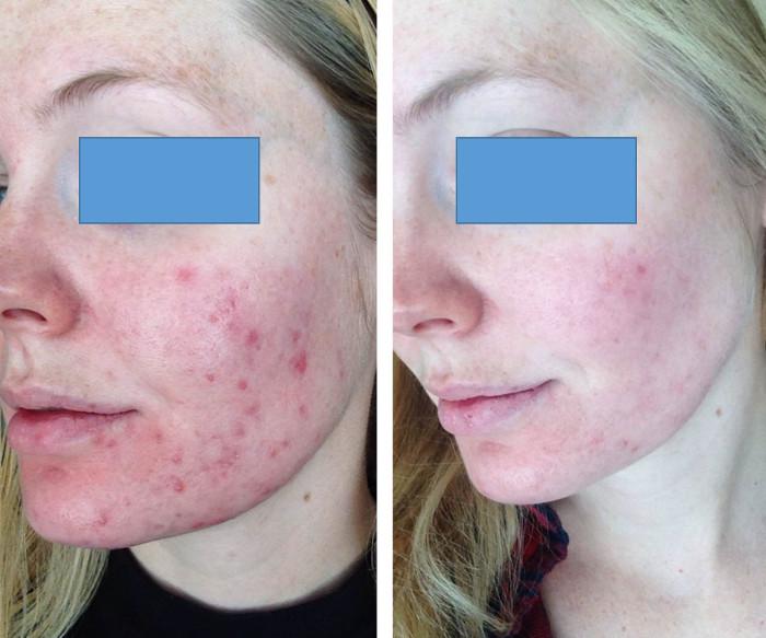 Угревая сыпь лица до и после лечения