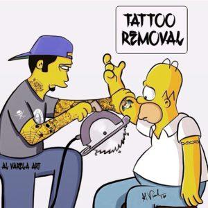 Удаление татуировок навсегда
