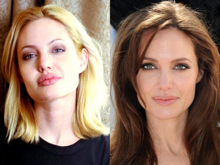 Анджелина Джоли до и после уменьшения губ