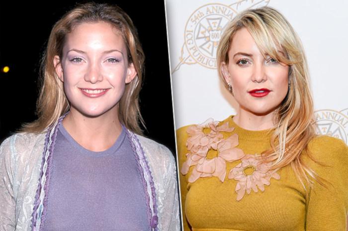 Кейт Хадсон до и после пластической операции отопластики ушей